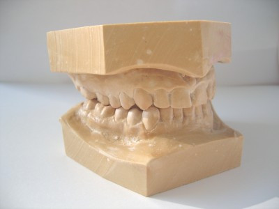3D Dental Model (Upper & Lower Jaw)