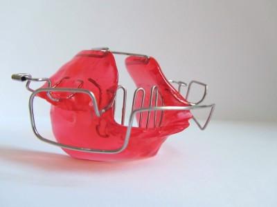 Bionator mit Zungengitter